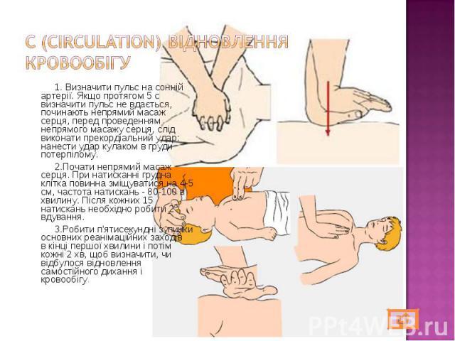 1. Визначити пульс на сонній артерії. Якщо протягом 5 с визначити пульс не вдається, починають непрямий масаж серця, перед проведенням непрямого масажу серця, слід виконати прекордіальний удар: нанести удар кулаком в груди потерпілому. 1. Визначити …