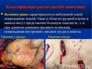 Колотые раны характеризуются небольшой зоной повреждения тканей. Раны в области
