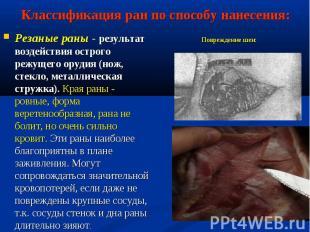 Резаные раны - результат воздействия острого режущего орудия (нож, стекло, метал