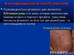 Разновидностью резанных ран являются: Рубленные раны (это раны, которые наносятс
