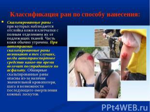 Скальпированные раны - при которых наблюдается отслойка кожи и клетчатки с полны