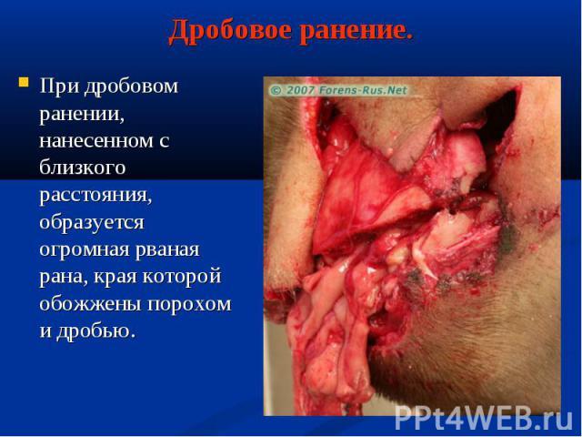 При дробовом ранении, нанесенном с близкого расстояния, образуется огромная рваная рана, края которой обожжены порохом и дробью. При дробовом ранении, нанесенном с близкого расстояния, образуется огромная рваная рана, края которой обожжены порохом и…