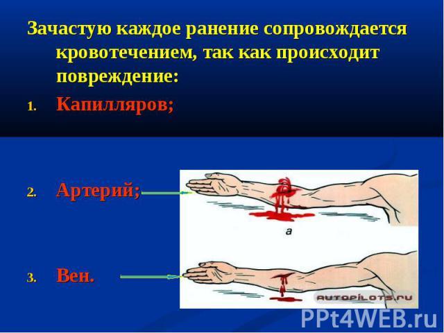 Зачастую каждое ранение сопровождается кровотечением, так как происходит повреждение: Зачастую каждое ранение сопровождается кровотечением, так как происходит повреждение: Капилляров; Артерий; Вен.