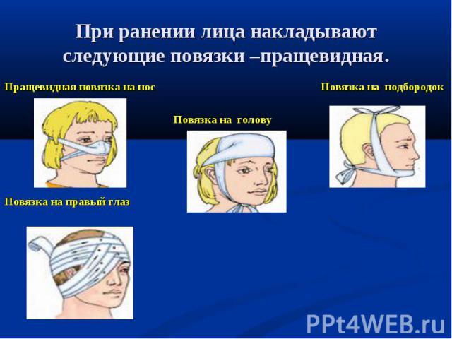 Пращевидная повязка на нос Повязка на подбородок Пращевидная повязка на нос Повязка на подбородок Повязка на голову Повязка на правый глаз