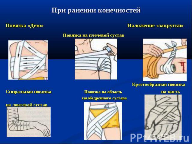 Повязка «Дезо» Наложение «закрутки» Повязка «Дезо» Наложение «закрутки» Повязка на плечевой сустав  Крестообразная повязка Спиральная повязка Повязка на область на кисть тазобедренного сустава на локтевой сустав