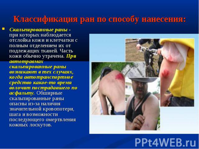 Скальпированные раны - при которых наблюдается отслойка кожи и клетчатки с полным отделением их от подлежащих тканей. Часть кожи обычно утрачена. При автотравмах скальпированные раны возникают в тех случаях, когда автотранспортное средство какое-то …