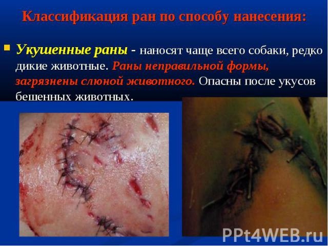 Укушенные раны - наносят чаще всего собаки, редко дикие животные. Раны неправильной формы, загрязнены слюной животного. Опасны после укусов бешенных животных. Укушенные раны - наносят чаще всего собаки, редко дикие животные. Раны неправильной формы,…