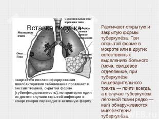 Различают открытую и закрытую формы туберкулёза. При открытой форме в мокроте ил