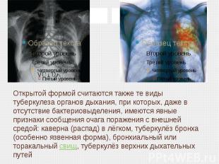 Открытой формой считаются также те виды туберкулеза органов дыхания, при которых