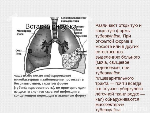 Различают открытую и закрытую формы туберкулёза. При открытой форме в мокроте или в других естественных выделениях больного (моча, свищевое отделяемое, при туберкулёзе пищеварительного тракта— почти всегда, а в случае туберкулёза лёгочной ткан…