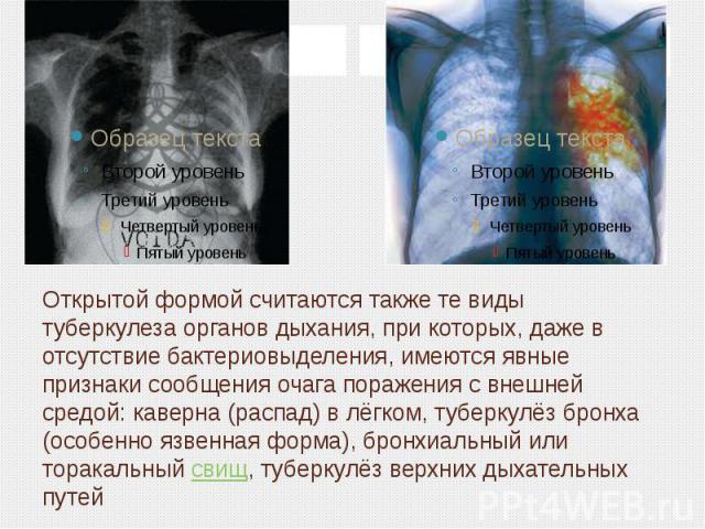 Открытой формой считаются также те виды туберкулеза органов дыхания, при которых, даже в отсутствие бактериовыделения, имеются явные признаки сообщения очага поражения с внешней средой: каверна (распад) в лёгком, туберкулёз бронха (особенно язвенная…
