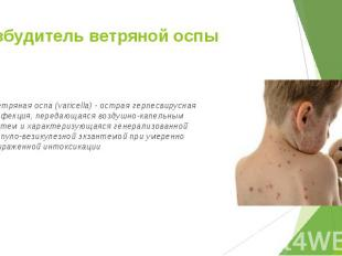 Ветряная оспа (varicella) - острая герпесвирусная инфекция, передающаяся воздушн