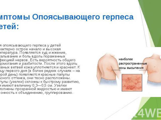 Для опоясывающего герпеса у детей характерно острое начало и высокая температура. Появляется зуд и жжение, покалывание и боль вдоль пораженных инфекцией нервов. Есть вероятность общего недомогания и разбитости. После этого вдоль нервных ветвей кожа …