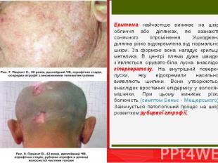 Еритема найчастіше виникає на шкірі обличчя або ділянках, які зазнають сонячного
