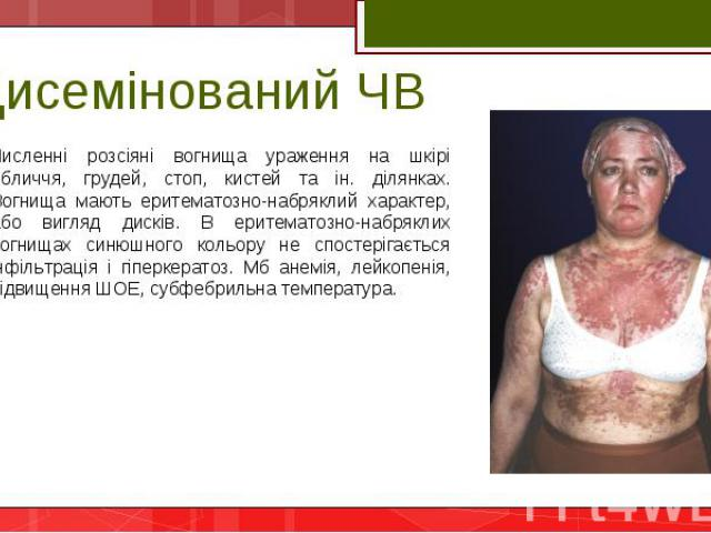 Численні розсіяні вогнища ураження на шкірі обличчя, грудей, стоп, кистей та ін. ділянках. Вогнища мають еритематозно-набряклий характер, або вигляд дисків. В еритематозно-набряклих вогнищах синюшного кольору не спостерігається інфільтрація і гіперк…