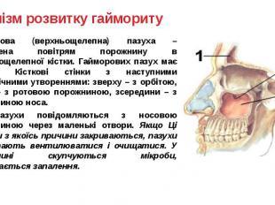Механізм розвитку гаймориту Гайморова (верхньощелепна) пазуха – заповнена повітр