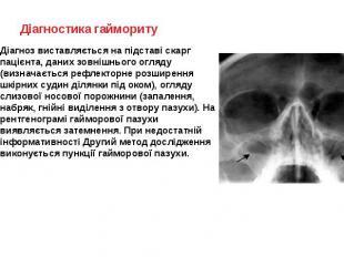 Діагностика гаймориту Діагноз виставляється на підставі скарг пацієнта, даних зо