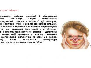 Терапія гострого гаймориту Для зменшення набряку слизової і відновлення нормальн