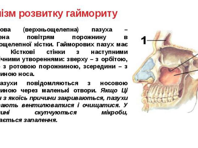 Механізм розвитку гаймориту Гайморова (верхньощелепна) пазуха – заповнена повітрям порожнину в верхньощелепної кістки. Гайморових пазух має спільні Кісткові стінки з наступними анатомічними утвореннями: зверху – з орбітою, знизу – з ротовою порожнин…