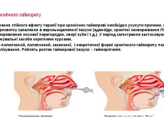Лікування хронічного гаймориту Для досягнення стійкого ефекту терапії при хронічних гайморові необхідно усунути причини, що сприяють розвитку запалення в верхньощелепної пазухи (аденоїди, хронічні захворювання ЛОР-органів, Викривлення носової перего…