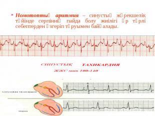 Номотоптық аритмия – синустық жүрекшелік түйінде серпіннің пайда болу жиілігі әр