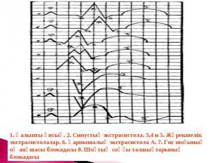 1. Қалыпты қисық. 2. Синустық экстрасистола. 3,4 и 5. Жүрекшелік экстрасистолала