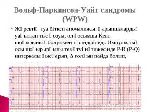 Вольф-Паркинсон-Уайт синдромы (WPW)Жүректің туа біткен аномалиясы. Қарыншалардың