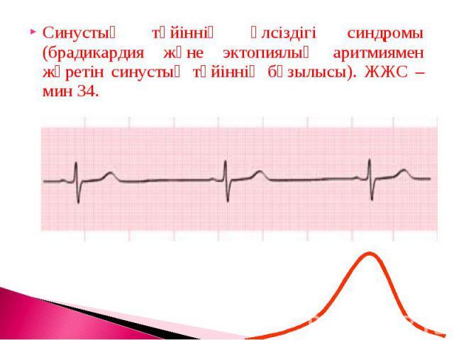 Синустық түйіннің әлсіздігі синдромы (брадикардия және эктопиялық аритмиямен жүретін синустық түйіннің бұзылысы). ЖЖС – мин 34.Синустық түйіннің әлсіздігі синдромы (брадикардия және эктопиялық аритмиямен жүретін синустық түйіннің бұзылысы). ЖЖС – мин 34.