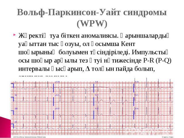 Вольф-Паркинсон-Уайт синдромы (WPW)Жүректің туа біткен аномалиясы. Қарыншалардың уақыттан тыс қозуы, ол қосымша Кент шоғырының болуымен түсіндіріледі. Импульстың осы шоғыр арқылы тез өтуі нәтижесінде P-R (P-Q) интервалы қысқарып, Δ толқын пайда болы…