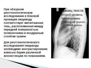 При обзорном рентгенологическом исследовании в боковой проекции пищеводу соответ