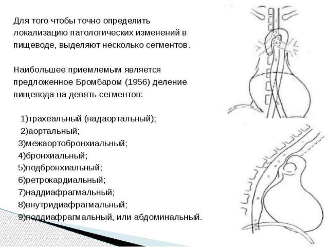 Для того чтобы точно определить Для того чтобы точно определить локализацию патологических изменений в пищеводе, выделяют несколько сегментов. Наибольшее приемлемым является предложенное Бромбаром (1956) деление пищевода на девять сегментов: 1)трахе…