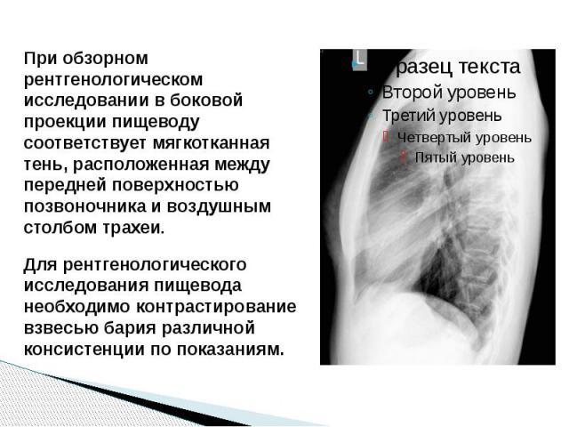 При обзорном рентгенологическом исследовании в боковой проекции пищеводу соответствует мягкотканная тень, расположенная между передней поверхностью позвоночника и воздушным столбом трахеи. Для рентгенологического исследования пищевода необходимо кон…