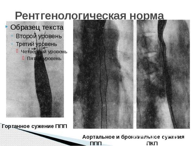 Рентгенологическая норма