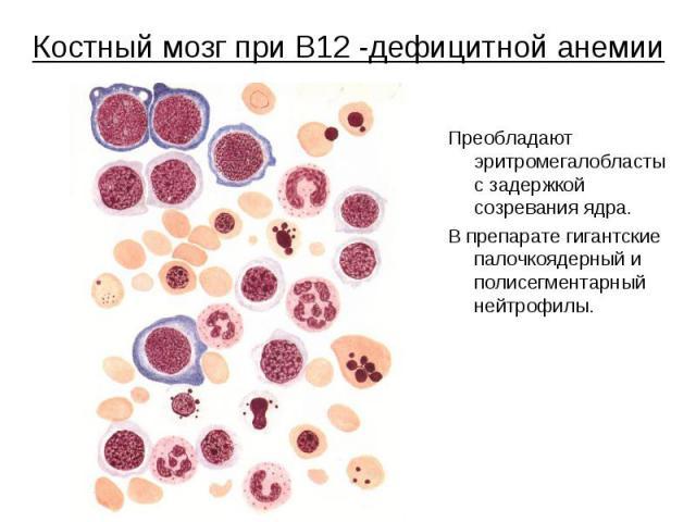 Костный мозг при В12 -дефицитной анемии Преобладают эритромегалобласты с задержкой созревания ядра. В препарате гигантские палочкоядерный и полисегментарный нейтрофилы.