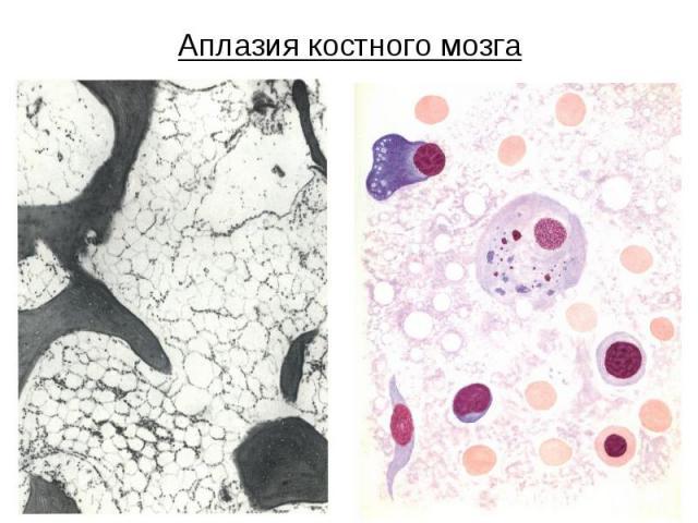 Аплазия костного мозга