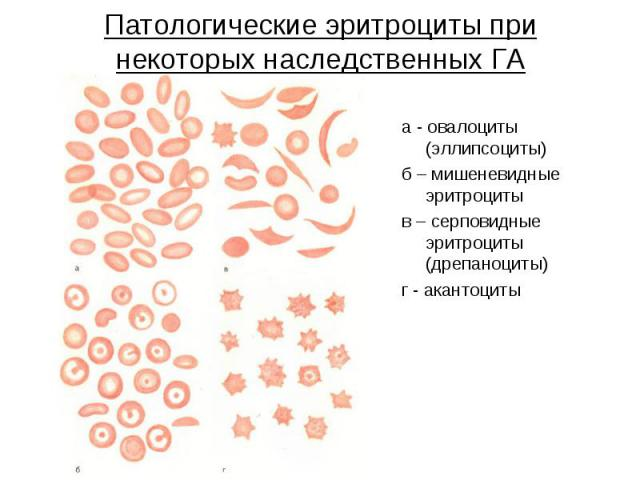 Патологические эритроциты при некоторых наследственных ГА а - овалоциты (эллипсоциты) б – мишеневидные эритроциты в – серповидные эритроциты (дрепаноциты) г - акантоциты
