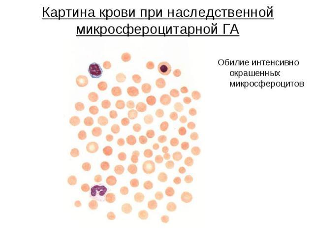 Картина крови при наследственной микросфероцитарной ГА Обилие интенсивно окрашенных микросфероцитов