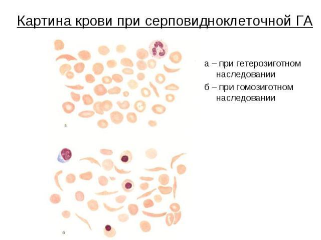 Картина крови при серповидноклеточной ГА а – при гетерозиготном наследовании б – при гомозиготном наследовании