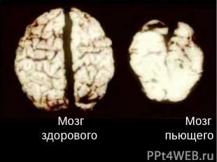 Мозг Мозг здорового пьющего