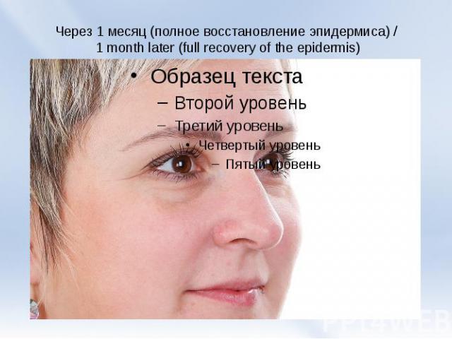 Через 1 месяц (полное восстановление эпидермиса) / 1 month later(full recoveryof the epidermis)