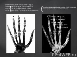 Рентгеновское изображение кисти в норме: позитивное изображение, наблюдаемое при