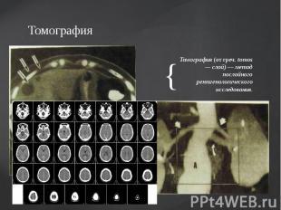 Томография Томография (от греч. tomos — слой) — метод послойного рентгенологичес
