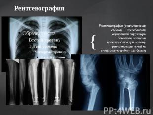 Рентгенография Рентгенография (рентгеновская съёмка) — исследование внутренней с