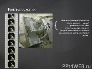 Рентгеноскопия Рентгеноскопия (рентгеновское просвечивание) — метод рентгенологи