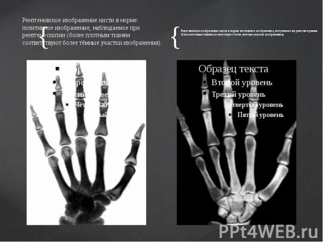 Рентгеновское изображение кисти в норме: позитивное изображение, наблюдаемое при рентгеноскопии (более плотным тканям соответствуют более тёмные участки изображения). Рентгеновское изображение кисти в норме: позитивное изображение, наблюдаемое при р…