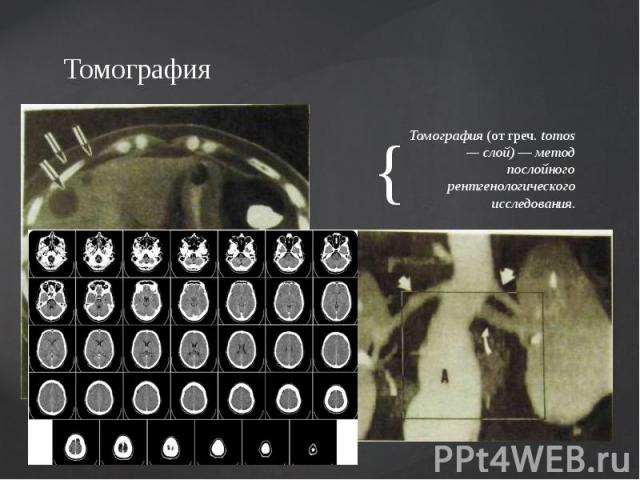 Томография Томография (от греч. tomos — слой) — метод послойного рентгенологического исследования.