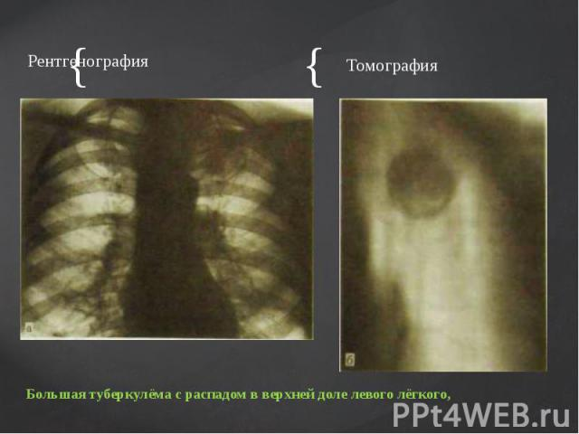 Рентгенография Рентгенография