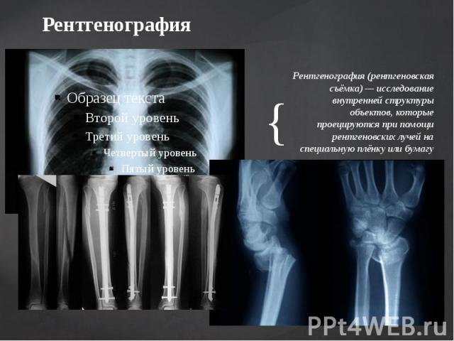 Рентгенография Рентгенография (рентгеновская съёмка) — исследование внутренней структуры объектов, которые проецируются при помощи рентгеновских лучей на специальную плёнку или бумагу