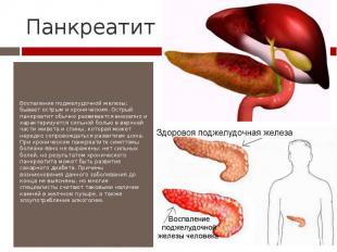 Панкреатит Воспаление поджелудочной железы; бывает острым и хроническим. Острый