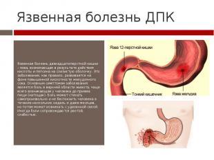 Язвенная болезнь ДПК Язвенная болезнь двенадцатиперстной кишки – язва, возникающ